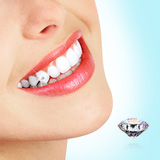 Gắn kim cương + Lấy cao răng + Đánh bóng răng
