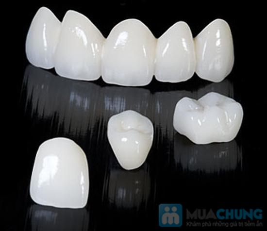 Dịch vụ bọc răng giả Titan tại Nha khoa Hà Nội - Chỉ với 650.000đ - 4