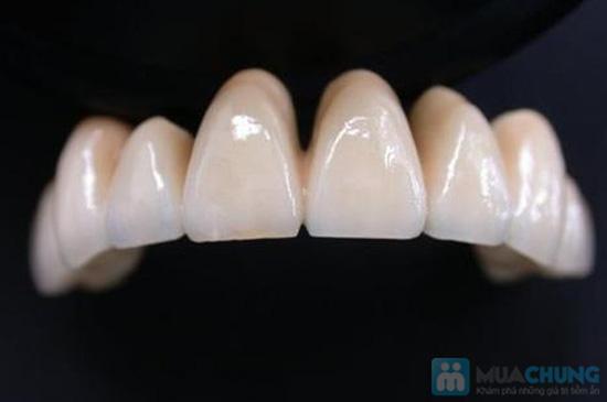 Dịch vụ bọc răng giả Titan tại Nha khoa Hà Nội - Chỉ với 650.000đ - 3