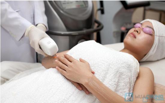 Dịch vụ triệt lông trị thâm với công nghệ new IPL Elight thế hệ mới tại TMV Hoàng Gia. Giá chỉ còn 190.000 đ - 1