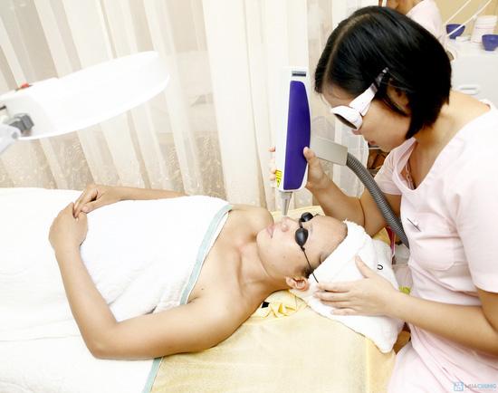 Điều trị tận gốc nám, tàn nhang công nghệ Laser mầu Q- Swicht ND Yag tại Thẩm mỹ viện Âu Việt - Chỉ với 265.000đ/ 01 buổi - 6