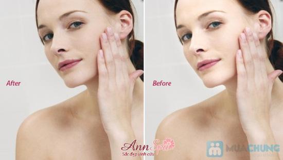Làm trắng mặt tức thì với collagen tươi tại Ann Spa - Chỉ với 140.000đ/ 01 buổi - 3