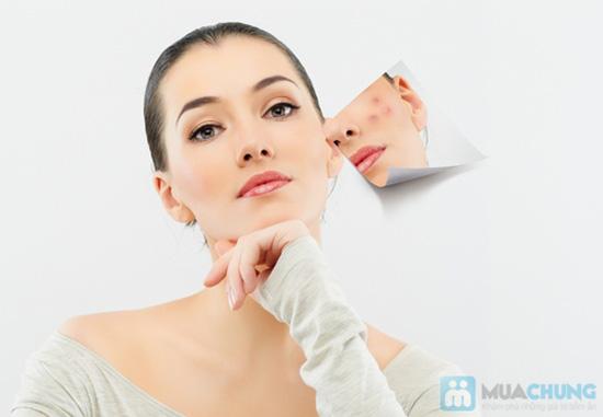 Trẻ hóa da mặt - sáng da - căng da tại Spa & Wedding Studio Kim Ngân chỉ với 130.000đ - 1