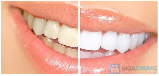 Dịch vụ tẩy trắng răng Nha Khoa Beverly Hill Bích Ngọc - Chỉ 425.000đ - 1