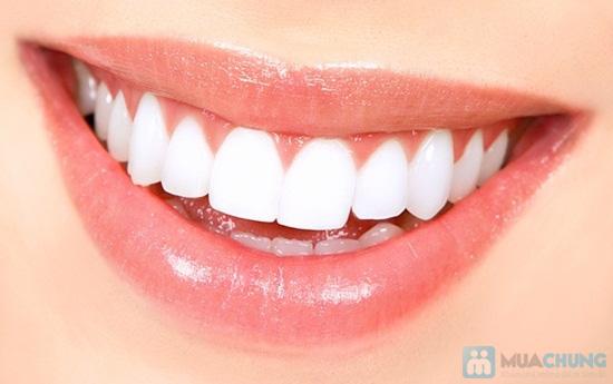 Cạo vôi + Đánh bóng răng tại Nha Khoa Nhật Quang - Chỉ 60.000đ - 10