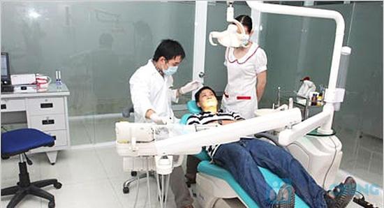 Dịch vụ tẩy trắng răng bằng đèn Plasma nha khoa Hợp nhất - 3