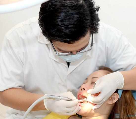 Gói lấy cao răng và đánh bóng răng tại Trung tâm chuẩn đoán y khoa VipLab - 2