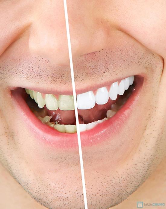 Phiếu tẩy trắng răng tại Phòng khám Nha khoa Hà Nội - 8