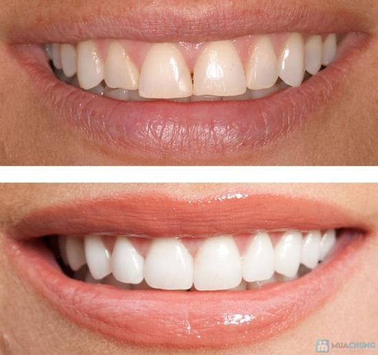 Phiếu tẩy trắng răng tại Phòng khám Nha khoa Hà Nội - 2