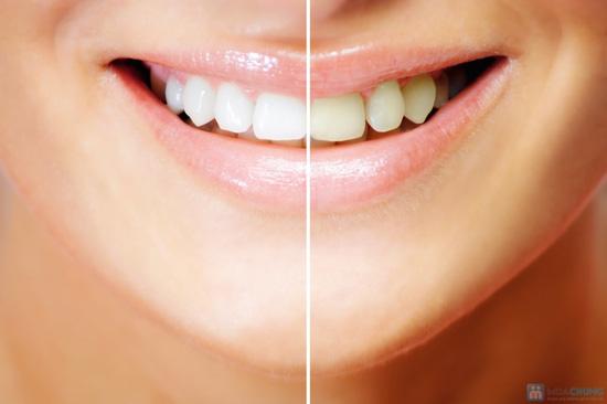 Tẩy trắng răng tại nhà tại Phòng khám đa Quốc tế Kỳ Hưng - 3