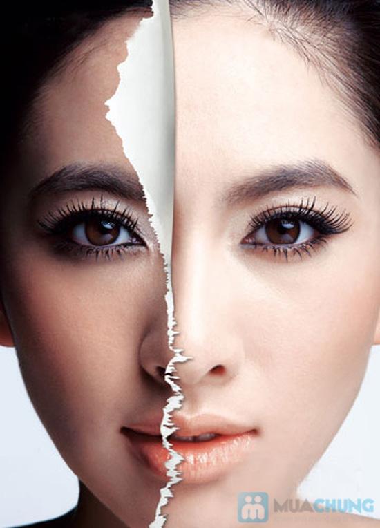 Điều trị nám, thâm, tàn nhang, trẻ hóa trắng mịn da mặt công nghệ Skin Face Peel tại TMV Hồng Ngọc - 3