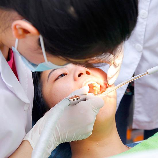 Lấy cao răng, chấm thuốc viêm lợi, camera nội soi