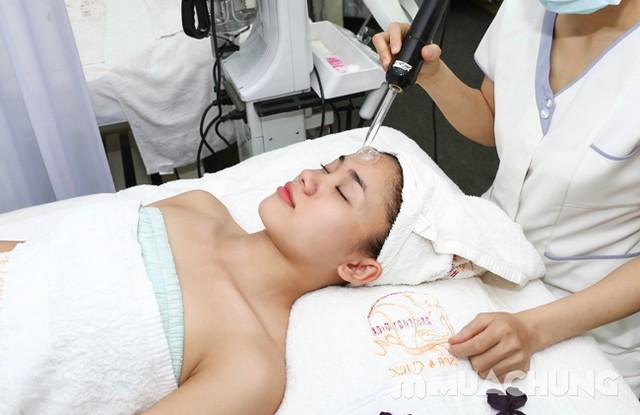 Se khít lỗ chân lông, kết hợp điều trị mụn với công nghệ Super Diamonds - Derma Laser Clinics - 4