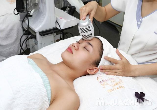 Se khít lỗ chân lông, kết hợp điều trị mụn với công nghệ Super Diamonds - Derma Laser Clinics - 6