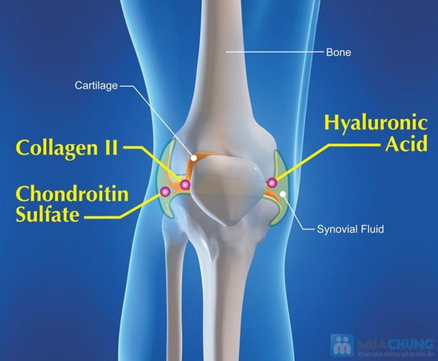 Collagen Type II (Hỗ trợ xương khớp) - 1