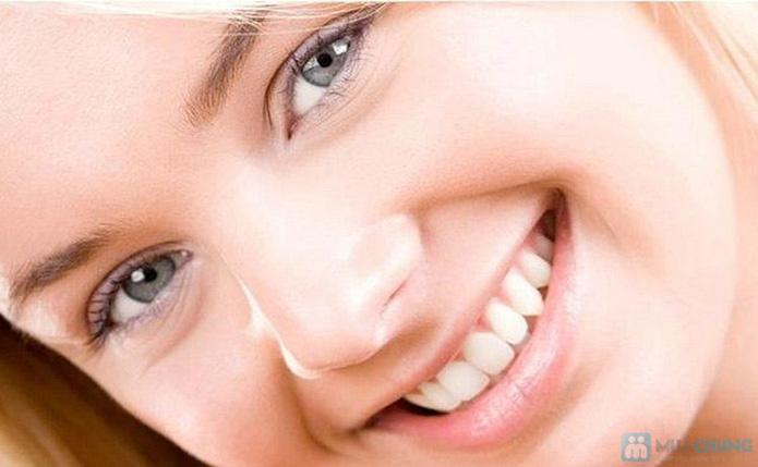 Dịch vụ lấy cao răng tại nha khoa Việt Đức - 1