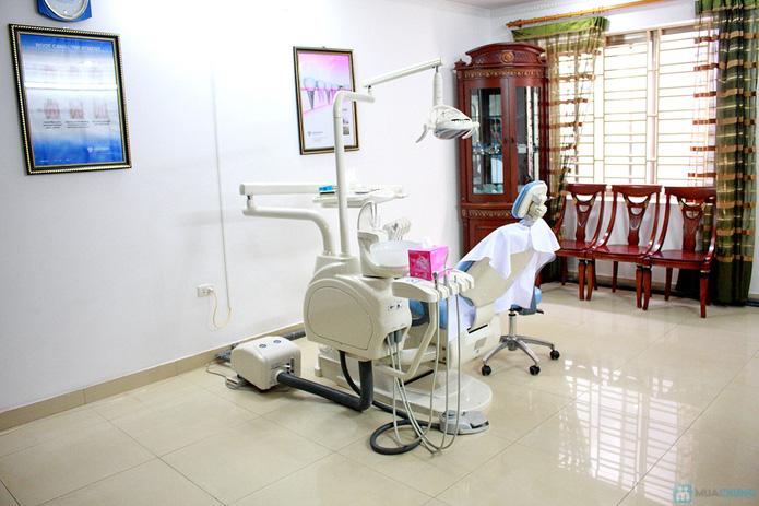Dịch vụ lấy cao răng tại nha khoa Việt Đức - 9