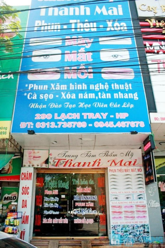 Giảm béo bằng công nghệ RF tại Thẩm mỹ Thanh Mai - Chỉ với 150.000đ - 1