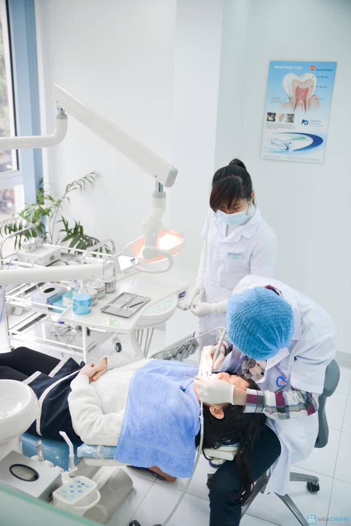 Tẩy trắng răng tại Nha khoa Đức - 2