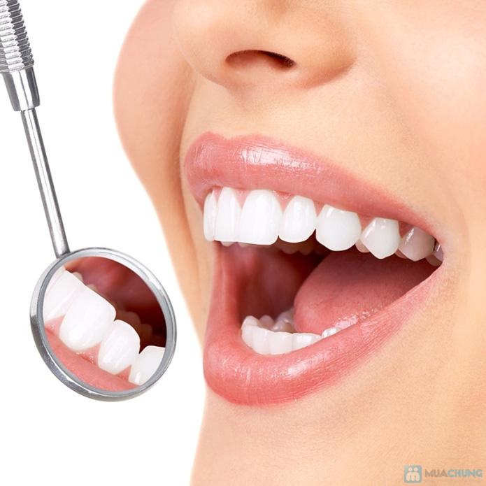 Đánh bóng và lấy cao răng Nha khoa Quốc tế Viplab - 2