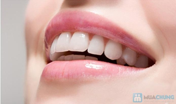 Răng sứ Titan Mỹ tại Nha Khoa Tâm Đức - 2