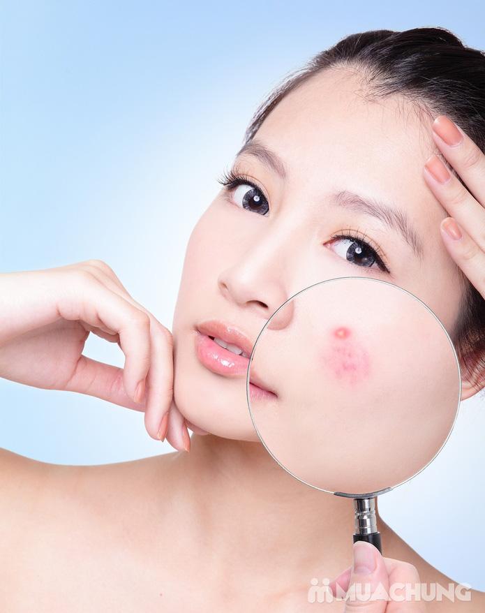Đặc trị mụn, se khít lỗ chân lông, mờ vết thâm sau mụn tại HM Beauty Clinic - 1