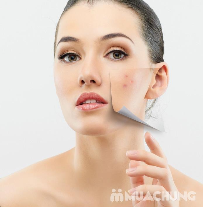 Điều trị mụn và thâm bằng sản phẩm Dermalogica - Spa Việt Hàn - 4