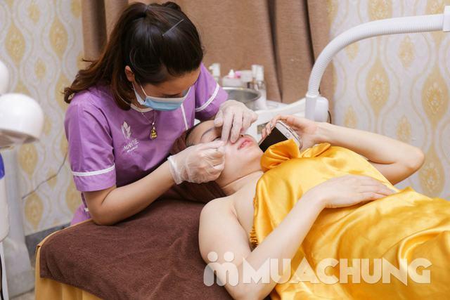 Trị mụn chuyên sâu, giảm mụn ngay lần đầu điều trị - 16
