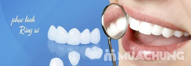 Giảm giá ưu đãi cho dịch vụ Làm răng sứ Cercon Nha khoa Viplab. Sở hữu ngay hàm răng trắng sáng với dịch vụ Làm răng sứ Cercon HT. - 4