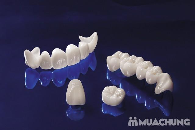Giảm giá ưu đãi cho dịch vụ Làm răng sứ Cercon Nha khoa Viplab. Sở hữu ngay hàm răng trắng sáng với dịch vụ Làm răng sứ Cercon HT. - 5