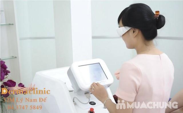 Triệt lông vĩnh viễn công nghệ Elight 5G vượt trội tại Dermaclinic - 8