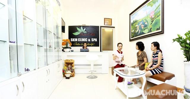 Đả thông kinh lạc, trị liệu đau nhức cổ, vai, gáy tại Thanh Hiền Skin Clinic & Spa - 15