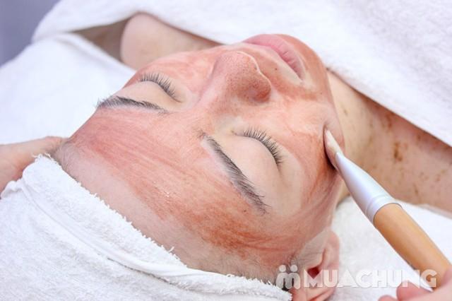Trị mụn chuyên sâu bằng công nghệ New E-Light Derma Laser Clinics - 7