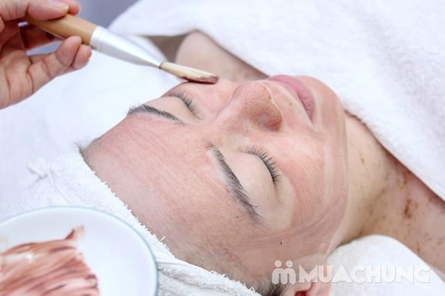Trị mụn chuyên sâu bằng công nghệ New E-Light Derma Laser Clinics - 6