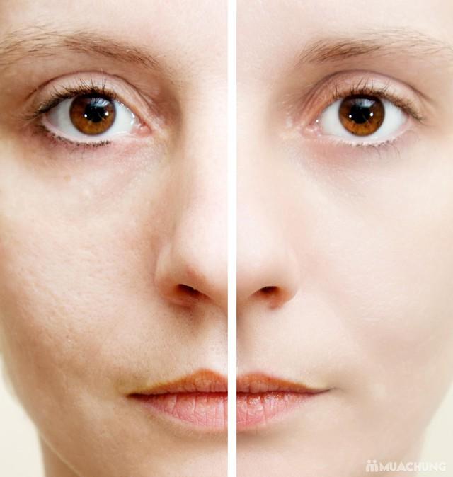 Se khít lỗ chân lông, kết hợp điều trị mụn với công nghệ Super Diamonds - Derma Laser Clinics - 1