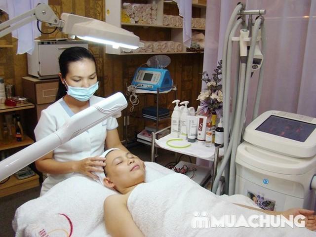 Trị mụn chuyên sâu bằng công nghệ New E-Light Derma Laser Clinics cho bạn làn da sạch mịn, mịn màng - 2