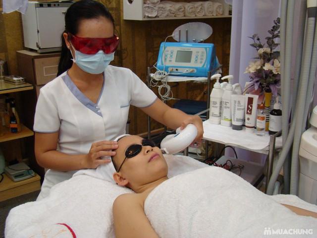 Trị mụn chuyên sâu bằng công nghệ New E-Light Derma Laser Clinics cho bạn làn da sạch mịn, mịn màng - 5