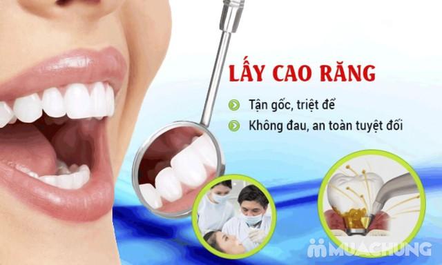 Lấy cao răng siêu âm công nghệ cao, đánh bóng răng Nha khoa Tâm Đức - 4