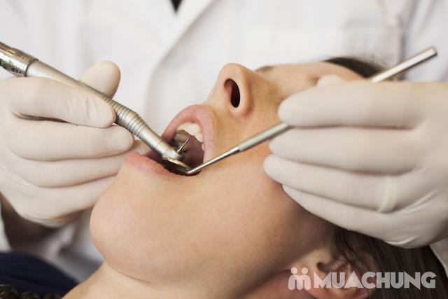 Lấy cao răng siêu âm + Tẩy trắng răng CN cao Nha khoa Thu Lan - 1