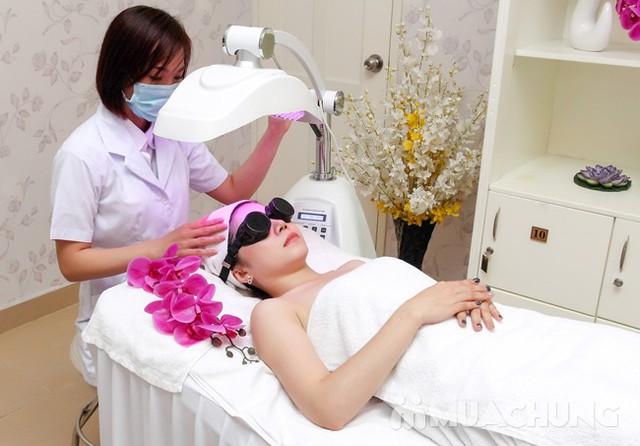 Lăn kim tế bào gốc Thụy Sỹ trị sẹo, mụn, tàn nhang Sao Việt Spa Clinic & Academy - 17