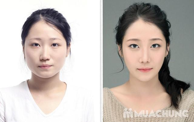 Thon gọn mặt V-Line cùng BS thẩm mỹ số 1 Hàn Quốc Koreana Beauty Clinic - 5