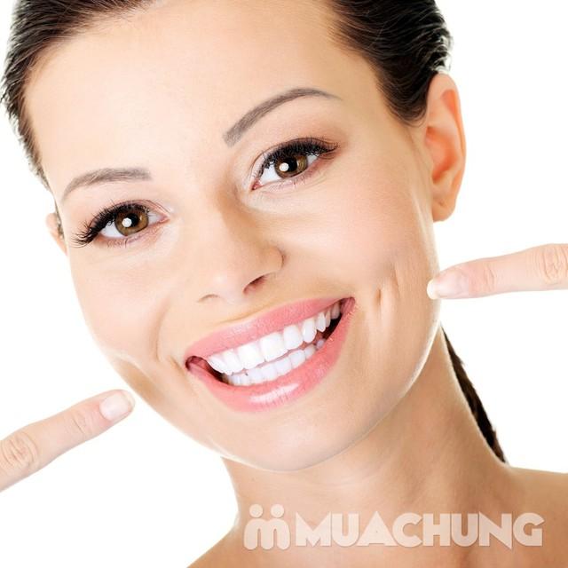 Tẩy trắng răng công nghệ đèn Plasma cao cấp Nha khoa Tâm Đức - 4
