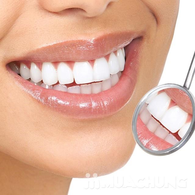 Tẩy trắng răng công nghệ đèn Plasma cao cấp Nha khoa Tâm Đức - 5