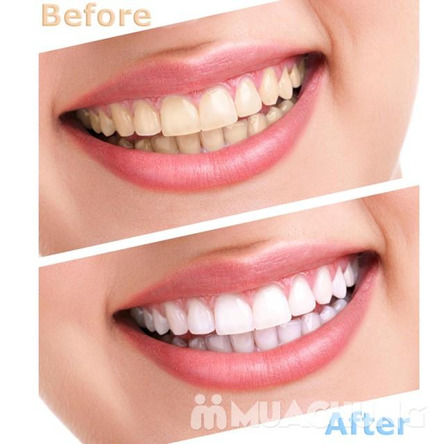 Tẩy trắng răng công nghệ đèn Plasma cao cấp Nha khoa Tâm Đức - 6