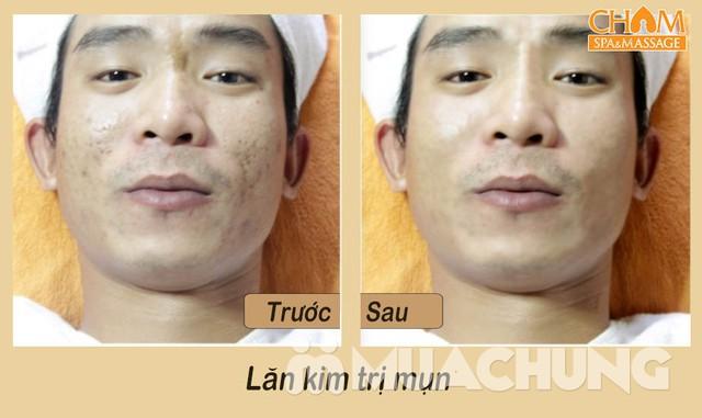 Trị mụn lăn kim tại Cham spa & Massage - 10