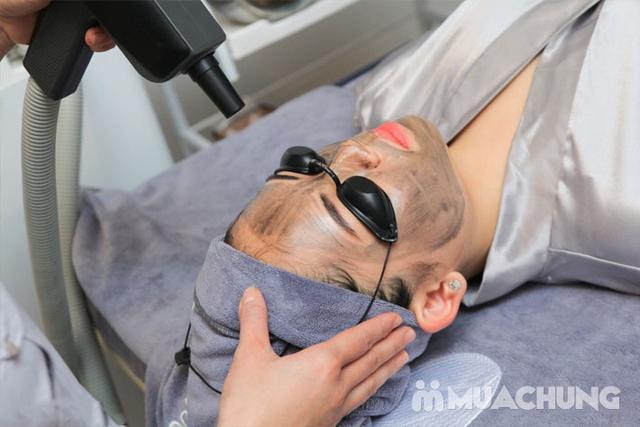 Hết mụn, mờ thâm, đều màu da với Laser Cacbon - 17