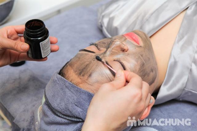 Hết mụn, mờ thâm, đều màu da với Laser Cacbon - 16