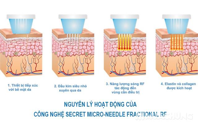 Làm đầy sẹo rỗ xóa vết thâm CN cấy da siêu vi điểm Thẩm mỹ viện Wonjin - 1