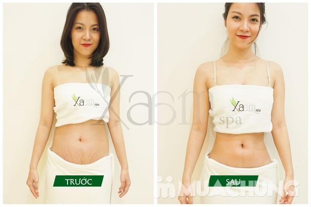 Siêu giảm béo bí quyết cổ truyền Trung Hoa Xaam Spa - 1