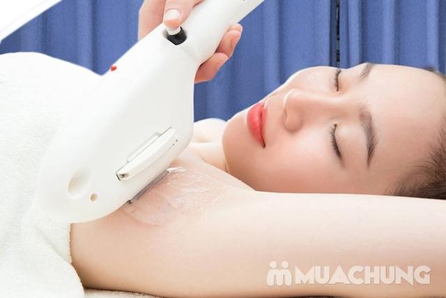 Triệt lông CN SHR, New Elight 2018 không đau rát tại TMV Wonjin - 4